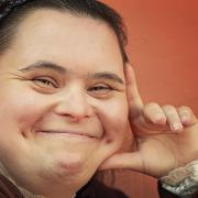 Young woman with downs syndrom